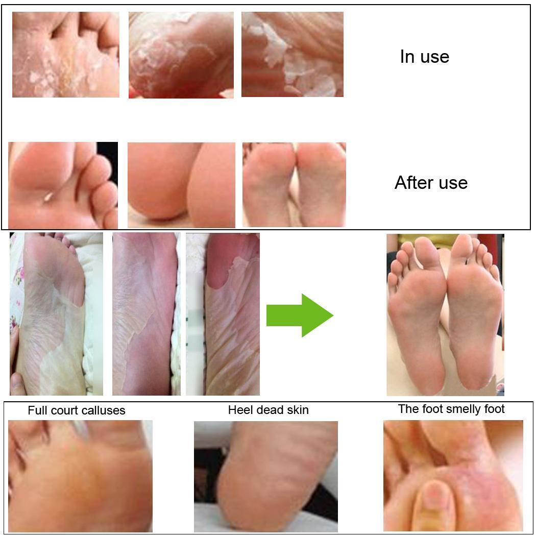 exfoliating foot peeling renewal mask remove hard dead skin cuticle heel 1 pair 11street. Black Bedroom Furniture Sets. Home Design Ideas